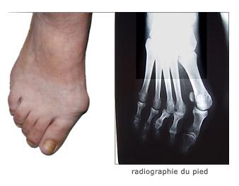 Hallux valgus description et traitement chirurgical for Douleur sur le cote exterieur du genou