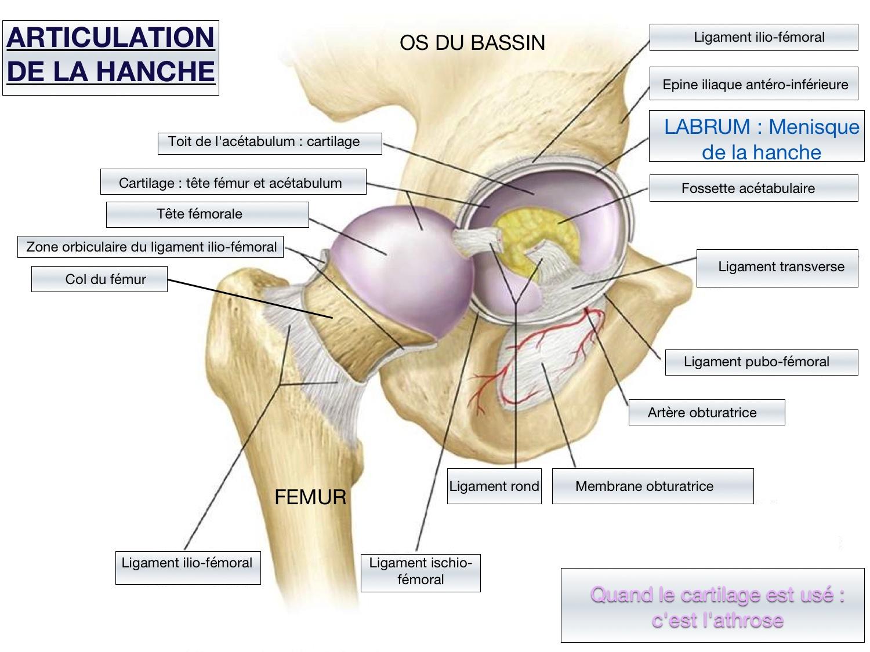 La médecine la hernie de lépine dorsale la cervicale