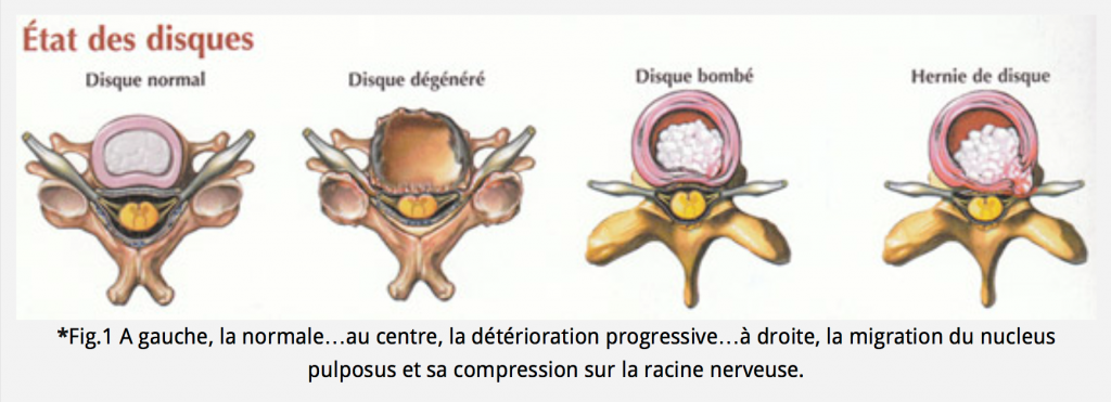 Canal cervical troit chirurgie orthop dique - Coup du lapin consequences ...
