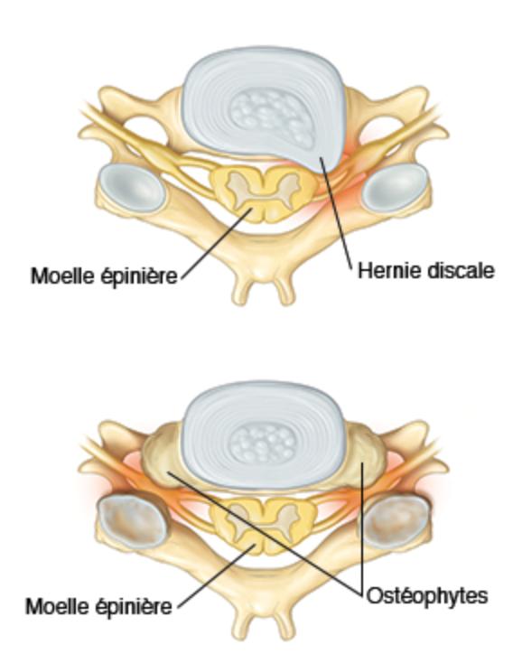 Névralgie cervico-brachiale, Chirurgie de la colonne ...